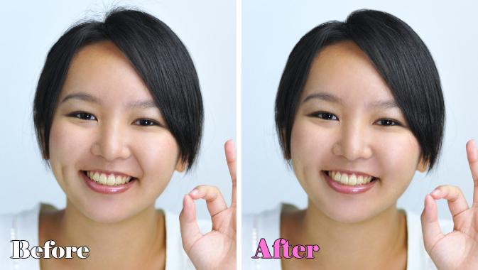 皺処理のビフォアアフター